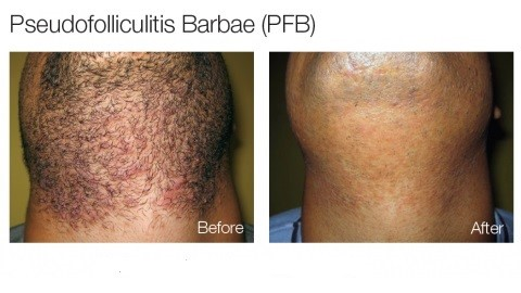 Difference Between Sycosis Barbae And Pseudofolliculitis Barbae