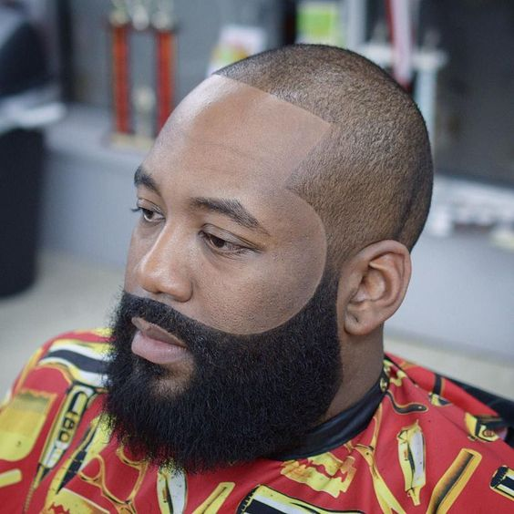 6 Beard Diseases You Should Know And Prevention