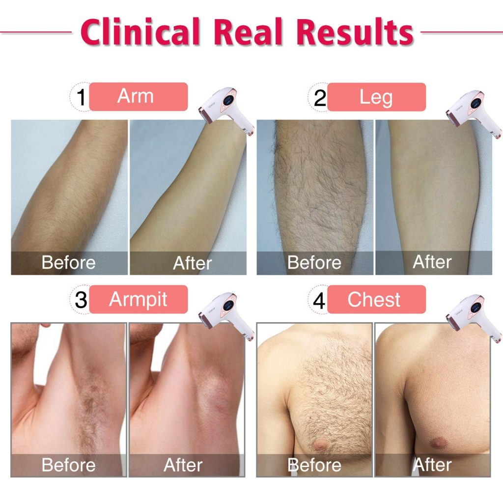 laser hair removal machines for sensitive skin