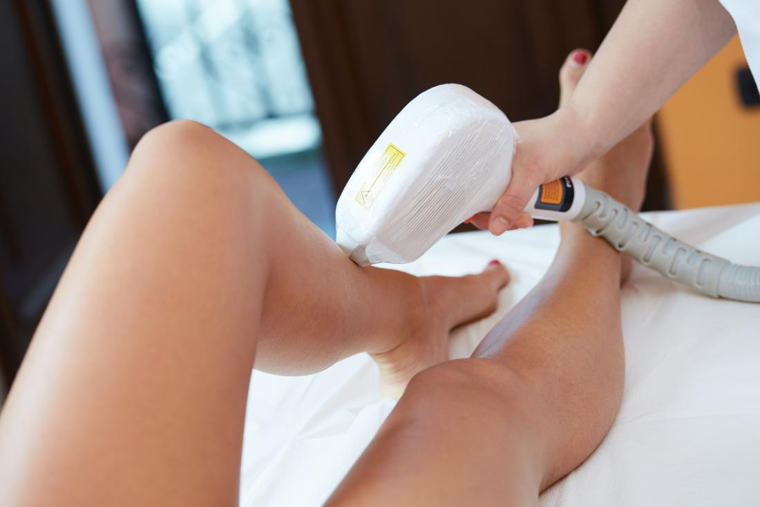 The difference between IPL and Laser?