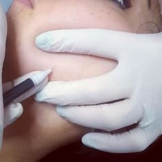 Can You Shave Really Between Electrolysis Treatments
